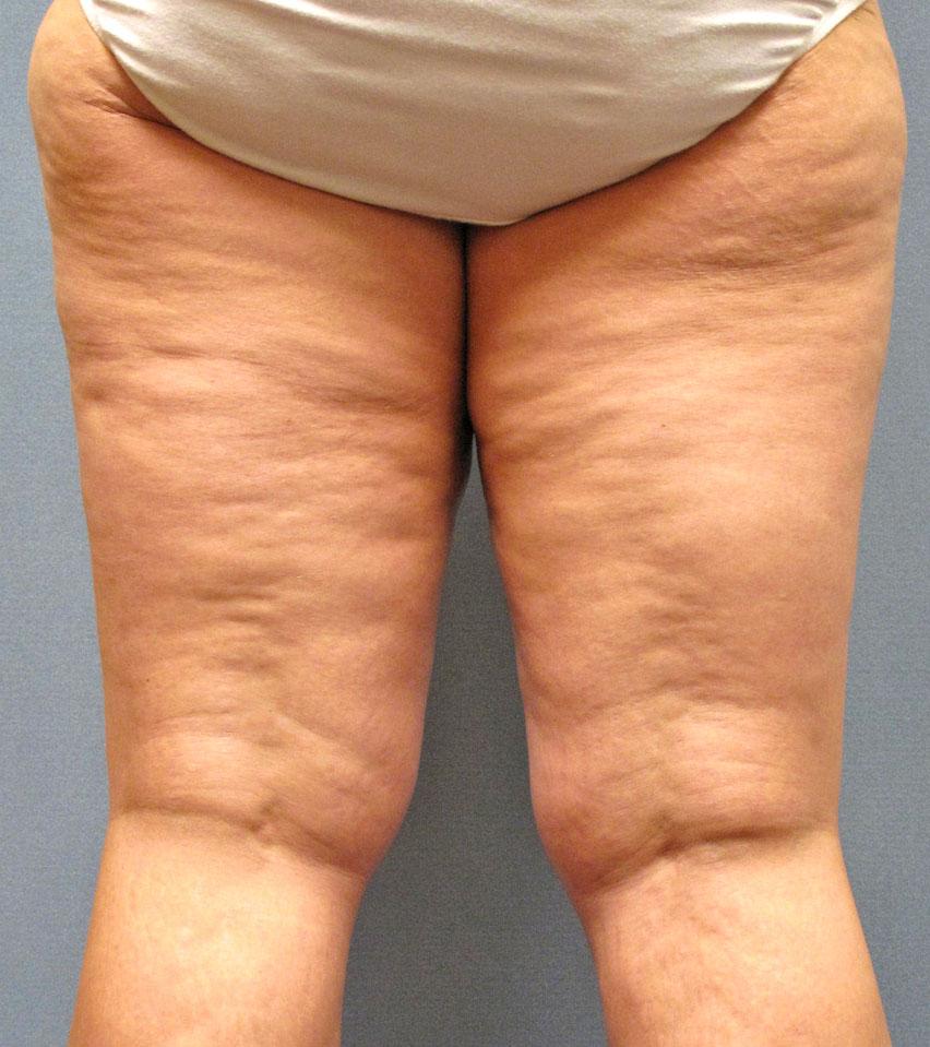 Фото огромных задниц с целюлитом фото 594-403