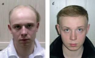 Клеона маска против выпадения волос и для роста волос
